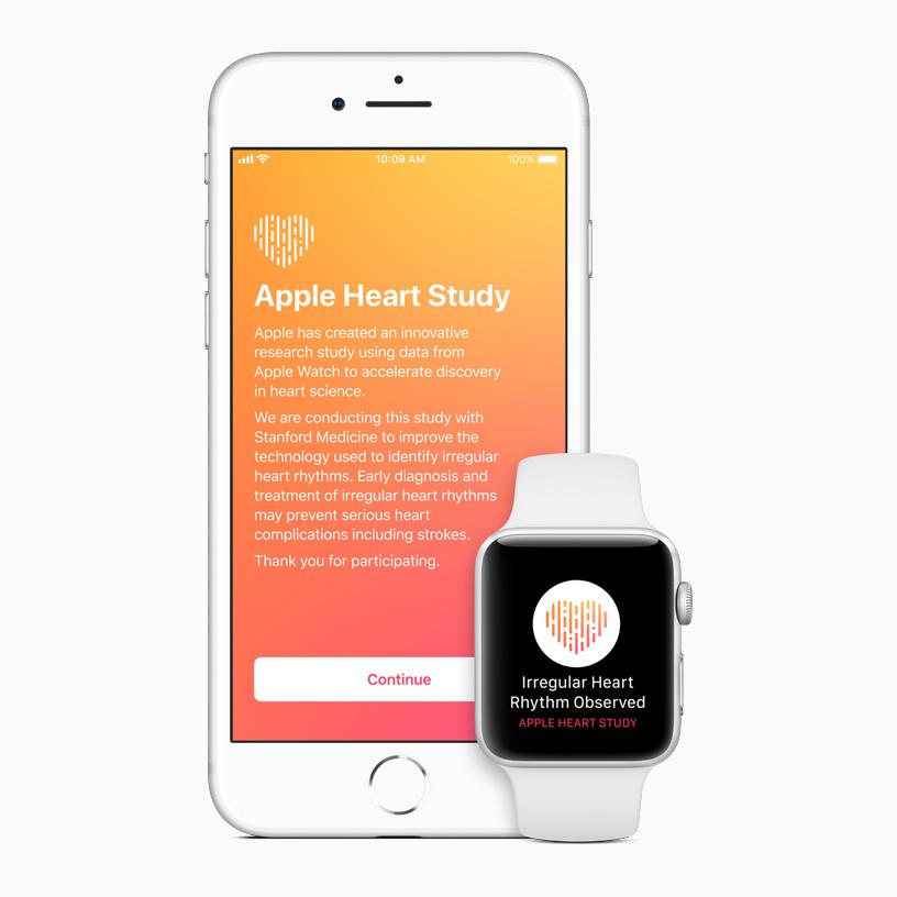 Apple Watch сошибками анализируют данные оработе сердца