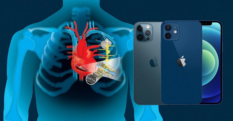 iPhone 12 и кардиостимулятор пока не враги. FDA утверждает, что риски невелики, но советует перестраховаться