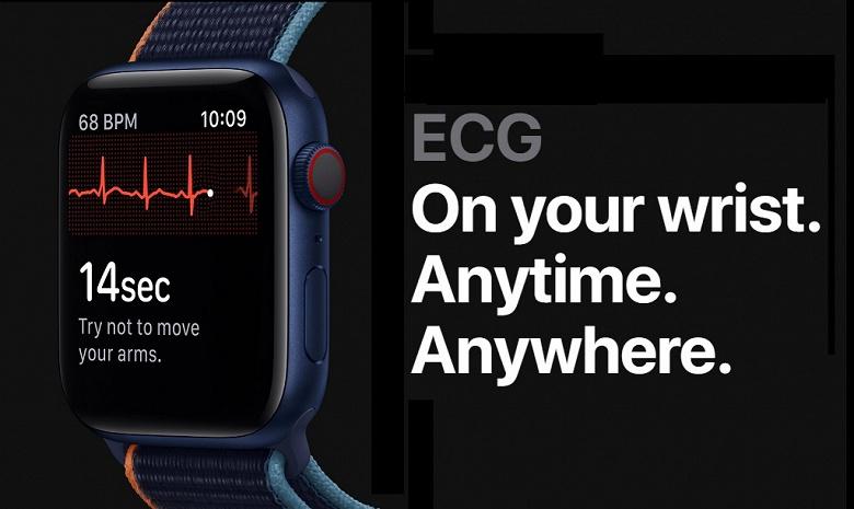 Часы Apple Watch не годятся для исследований, связанных со здоровьем