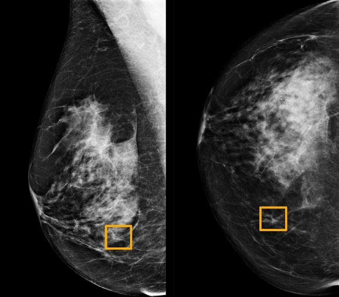 Искусственный интеллект Google выявляет рак груди точнее опытного врача