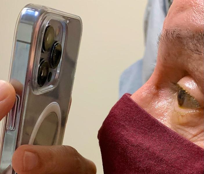 Офтальмолог уже использует макро-режим iPhone 13 Pro в своей работе