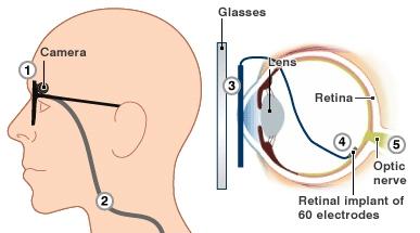 Argus II Retinal Prosthesis System ���� ������� ��������������